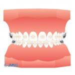 歯の矯正治療は何歳までできるのか