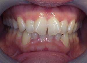 捻転 捻じれた歯