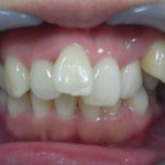 【矯正症例写真】八重歯、叢生、治療途中【モニター】