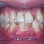 【モニター症例写真】叢生、着色、非抜歯、歯を抜かない【ワイヤー矯正】