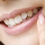 大人の歯列矯正