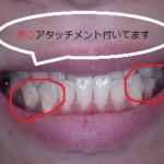【よくある質問】歯科矯正用マウスピース・インビザラインのアタッチメントって何【インビザライン】