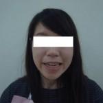 【モニター症例写真】インビザラインは前歯に隙間のあるタイプの治療も得意です!【インビザライン】