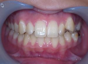 矯正前 叢生 八重歯