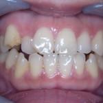 【モニター症例写真】非抜歯で2年5か月で矯正終了致しました【ワイヤー矯正】【ホワイトニング】