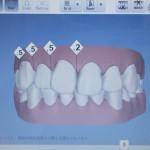 ボーナスの使い道…歯列矯正でご自分に投資してみるのはいかがでしょうか?