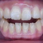 【ブログ】歯並び別!あなたの歯並びだとインビザラインは何個?