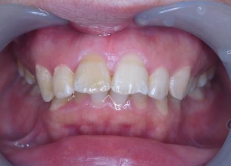 出っ歯 前突