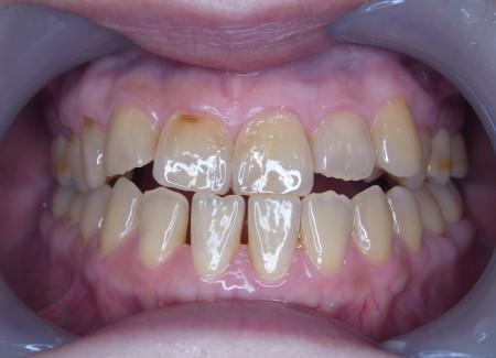 開咬 開口 下顎前突